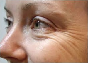 Anti Aging Treatment Delhi