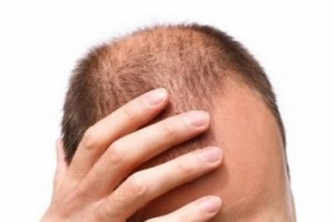 Stem Cell Therapy For Hair Care